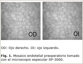 Como Hacer Una Hoja De Vida Adecuada Correcci³n De La Alta Miopa Con Implante De Lente Fáquica