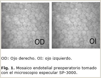 Correcci³n de la alta miopa con implante de lente fáquica