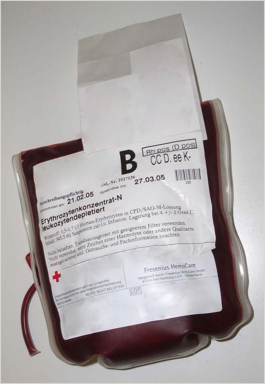 Dr Lam Blood Type O Blood Transfusion