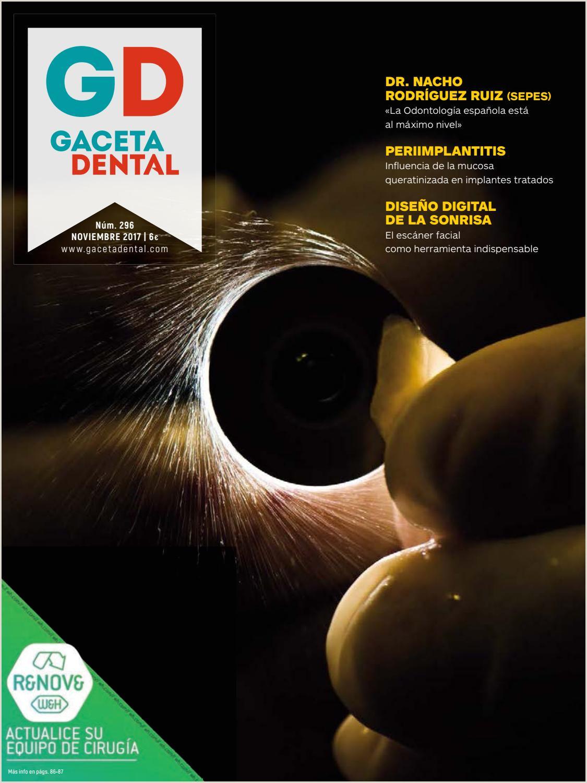 Gaceta Dental 296 by Pelda±o issuu