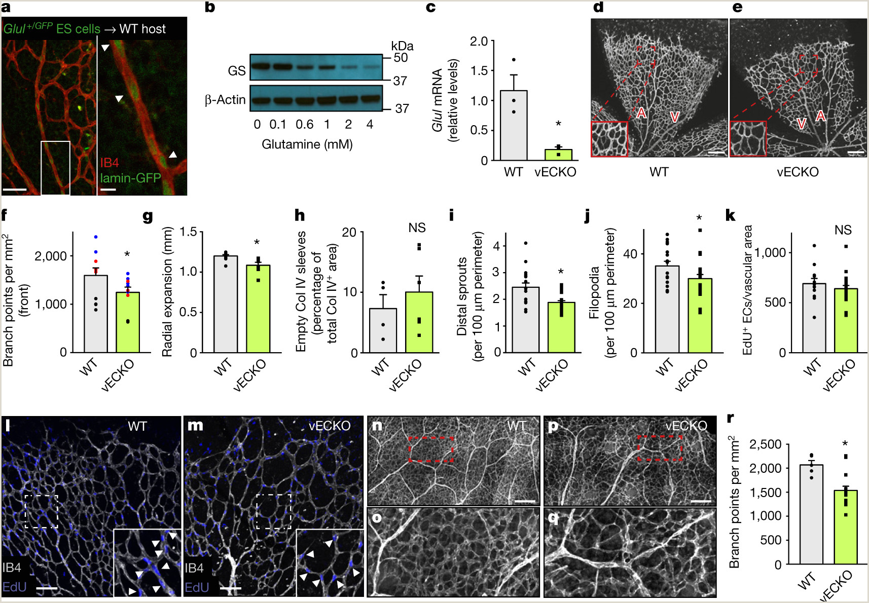 Role of glutamine synthetase in angiogenesis beyond